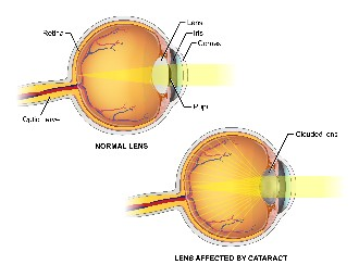 Lens affected by cataract