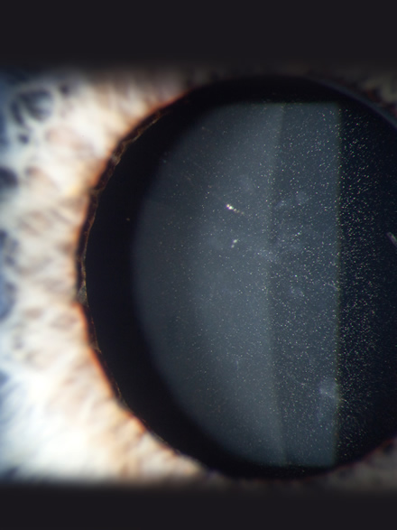 A study has shown that glistenings occurred in 65% of IOLs following cataract surgery